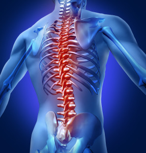 Spinal Cord Injury lawsuit funding
